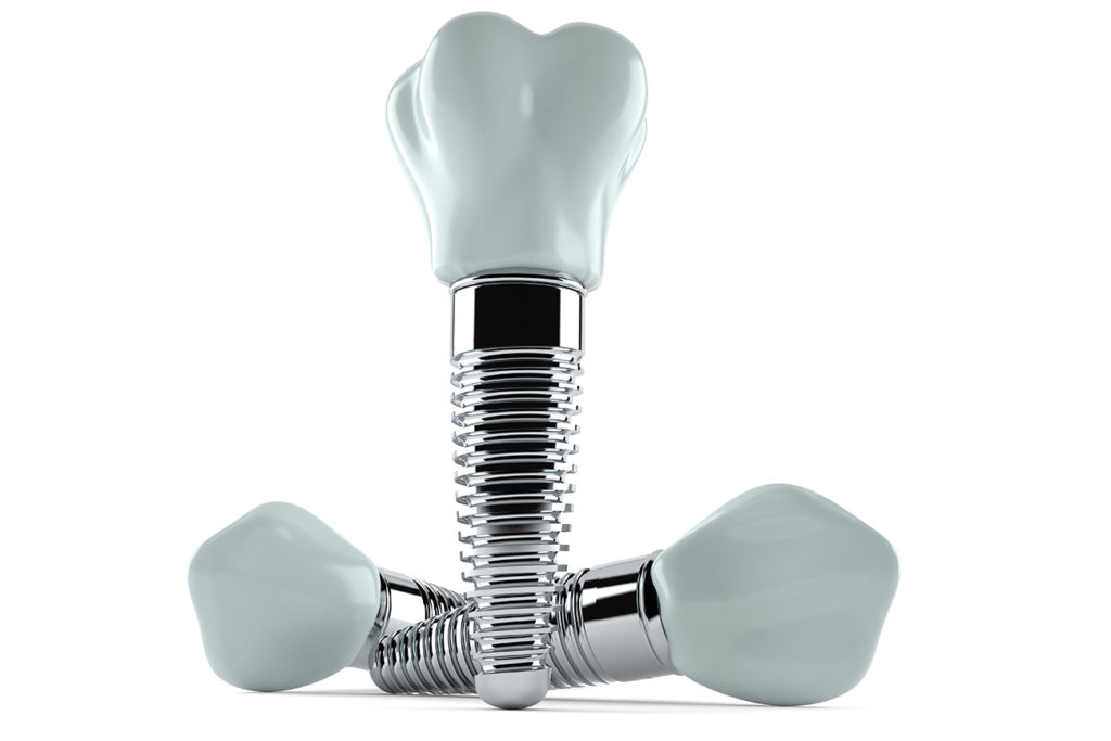 Full mouth restoration dental implants