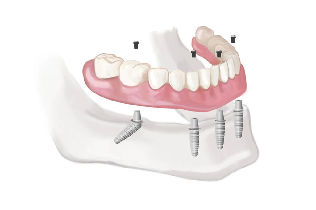 full mouth dental implants cost