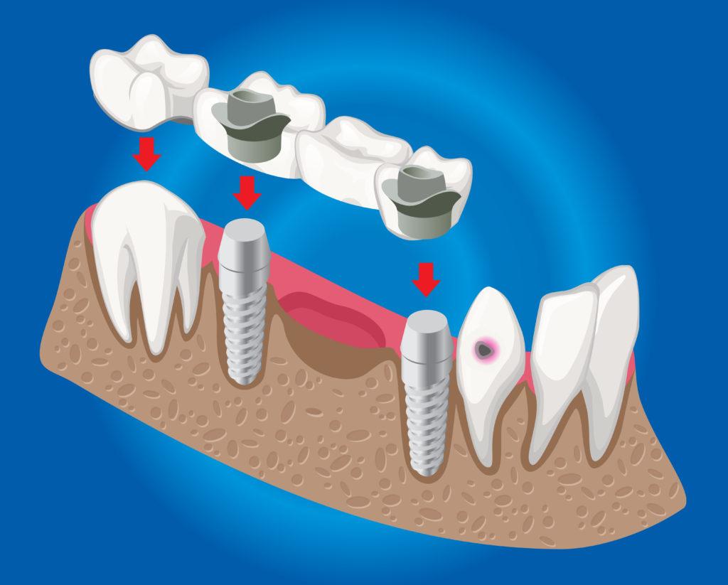 Bridge implant cost dental implants mexico