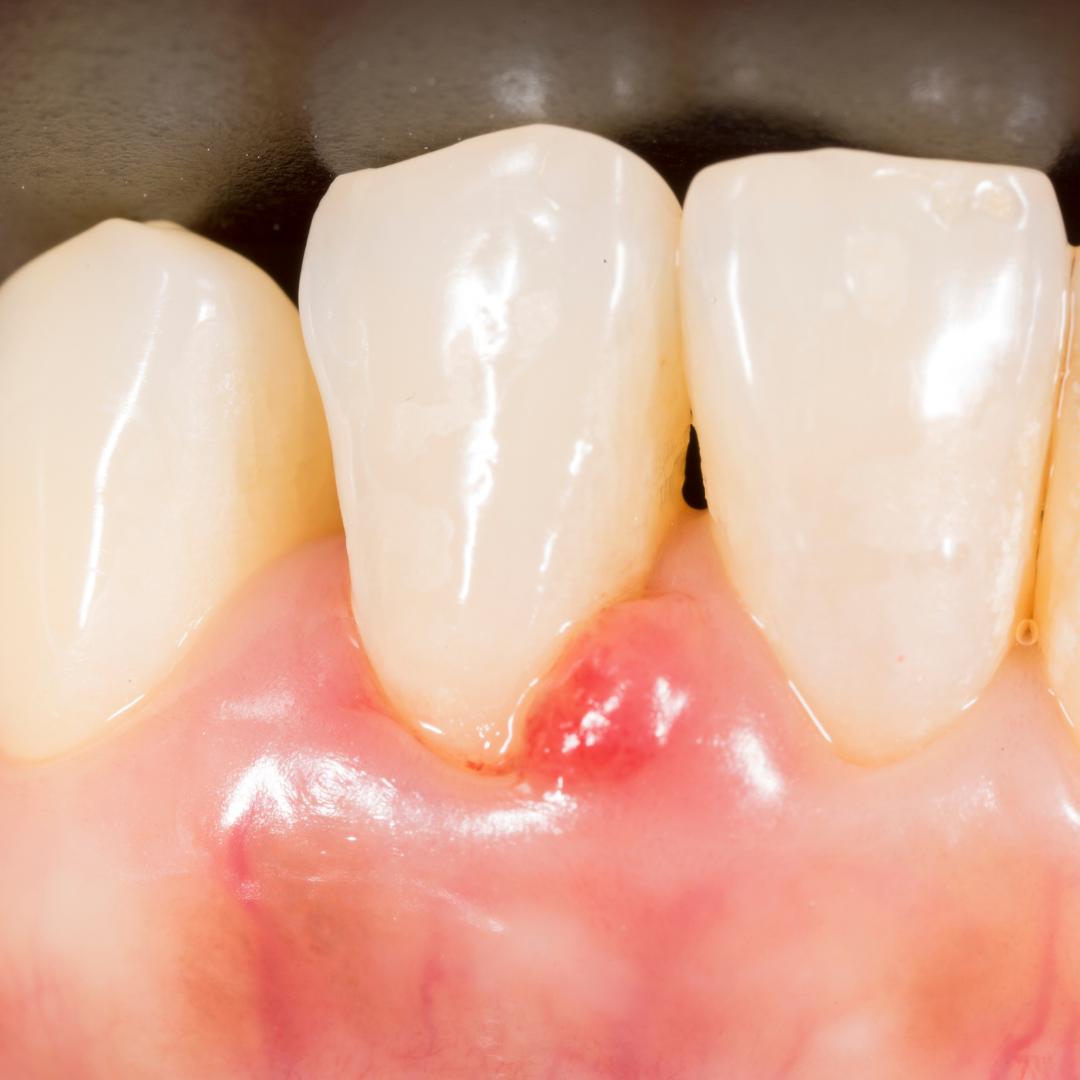 periodontal / gum disease